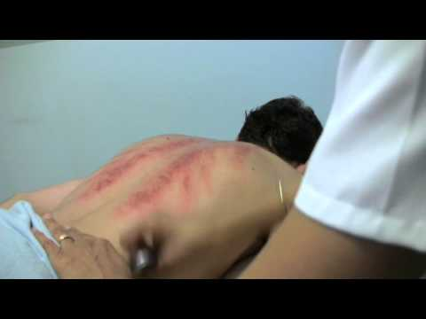 The Practice of Chinese Medicine - What is Gua Sha?